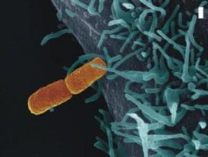 To je ona, bakterie Shigella Flexneri. Foto: Eurekalert.org
