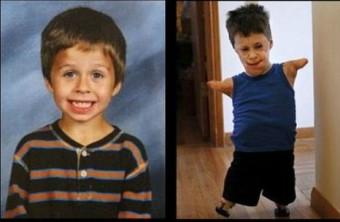 Jeremiah Mitchell předtím a poté, co mu lékaři amputovali končetiny a části obličeje, aby ho zachránili při nákaze meningitidou. Foto: Huffingtonpost