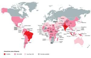 Mapa rozšíření lepry. Evropský výskyt onemocnění je z globálního hlediska zanedbatelný, v Rumunsku přesto existuje poslední leprosárium. Infografika: Leprosymission.org