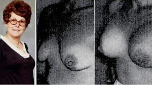 Timmie Jean Lindseyová byla první ženou, která si nechala dát silikonové implantáty. Zdroj: Esthé