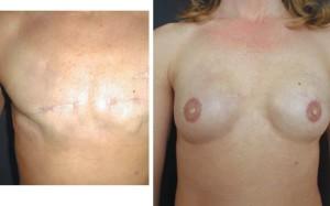 Oboustranná rekonstrukce prsů pomocí expandérů a implantátů, Foto: Jan Měšťák (publikace Prsa očima plastického chirurga)