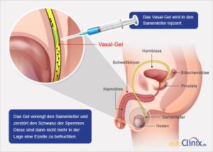 Vasalgel je polymerový gel určený ke vstříknutí do chámovodu, kde zablokuje průchod spermií do ejakulátu. Foto: Euroclinic