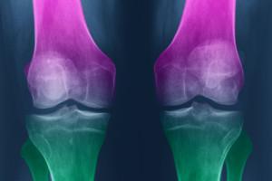 Artróza působí bolest, ale glukosamin a chondroitin se moc předvedly v jejím zvládání.