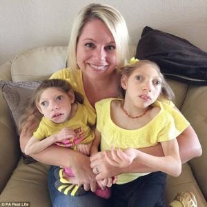 Claire a Loly Hartleyovy z Kansasu se narodily s mikrocefalií, její příčina je neznámá. S virem zika v Brazílii nemá nic společného. Foto: DailyMail