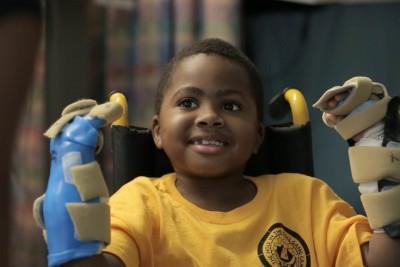 Zion Harvey, chlapec s oboustranně transplantovanýma rukama. Příkald, kdy se operace povedla. Foto: The Children´s Hospital of Philadelphia