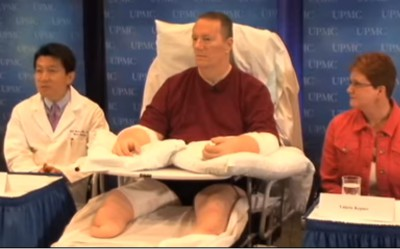 Krátce po operaci: mediální show v televizi, velké naděje do budoucnosti (vlevo v bílém plášti je lékař, který transplantaci provedl dr. Lee). Foto: YouTube